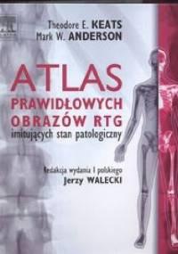 Atlas prawidłowych obrazów RTG imitujących stan patologiczny - Theodore E. Keats, Mark W. Anderson